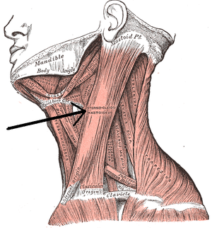 Anterior triangle of the neck - Image: Musculussternocleido mastodieus