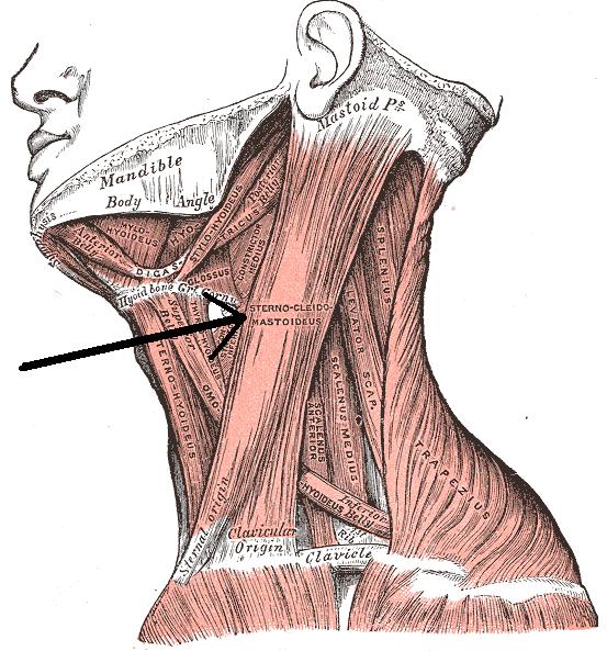Musculussternocleidomastodieus
