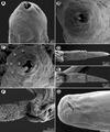 Parasite140131-fig2 Capillaria plectropomi (Nematoda) - Scannin Electron Microscopy.tif