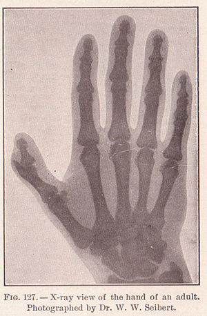 Pg 197 Xray of Adult hand