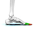 Phalanges of left foot03 medial view.png