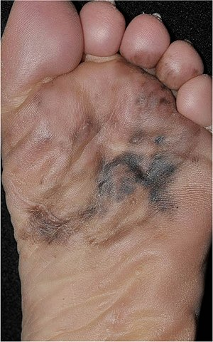 Photography of a large acral lentiginous melanoma