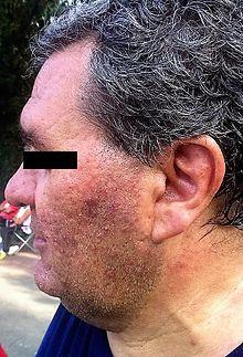 Gli effetti della rosacea su un soggetto adulto in fase acuta.