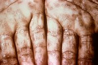 Typical presentation of secondary syphilis rash on the palms of the hands and usually also seen on soles of feet