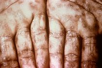 Secondary Syphilis on palms CDC 6809 lores.rsh.jpg