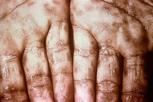 Choroby weneryczne u mężczyzn - rodzaje i objawy