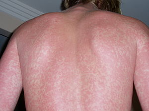 Whole Body Is Itchy But No Rash - Doctor answers on HealthTap
