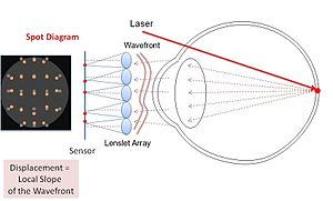 Shack–Hartmann wavefront sensor - Shack–Hartmann system in optometry: Laser creates a virtual light source in the retina. The lenslet array creates spots in the sensor according to the wavefront coming out of the eye.