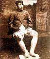Soldado-chileno-con-verrugas.jpg