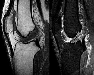 Anterior cruciate ligament - MRI of anterior cruciate ligament tear