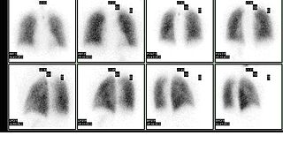 Ventilation/perfusion scan