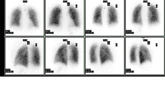 Ventilation/perfusion scan - Image: Ventperf
