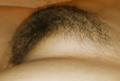 Vulva 2b Mons Venus Mons Pubis.png