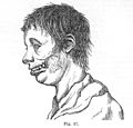 Diseases of the jaw, etching,1887. Wellcome L0030224.jpg