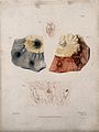Four sections of diseased intestine. Colour mezzotint by W. Wellcome V0009762EL.jpg