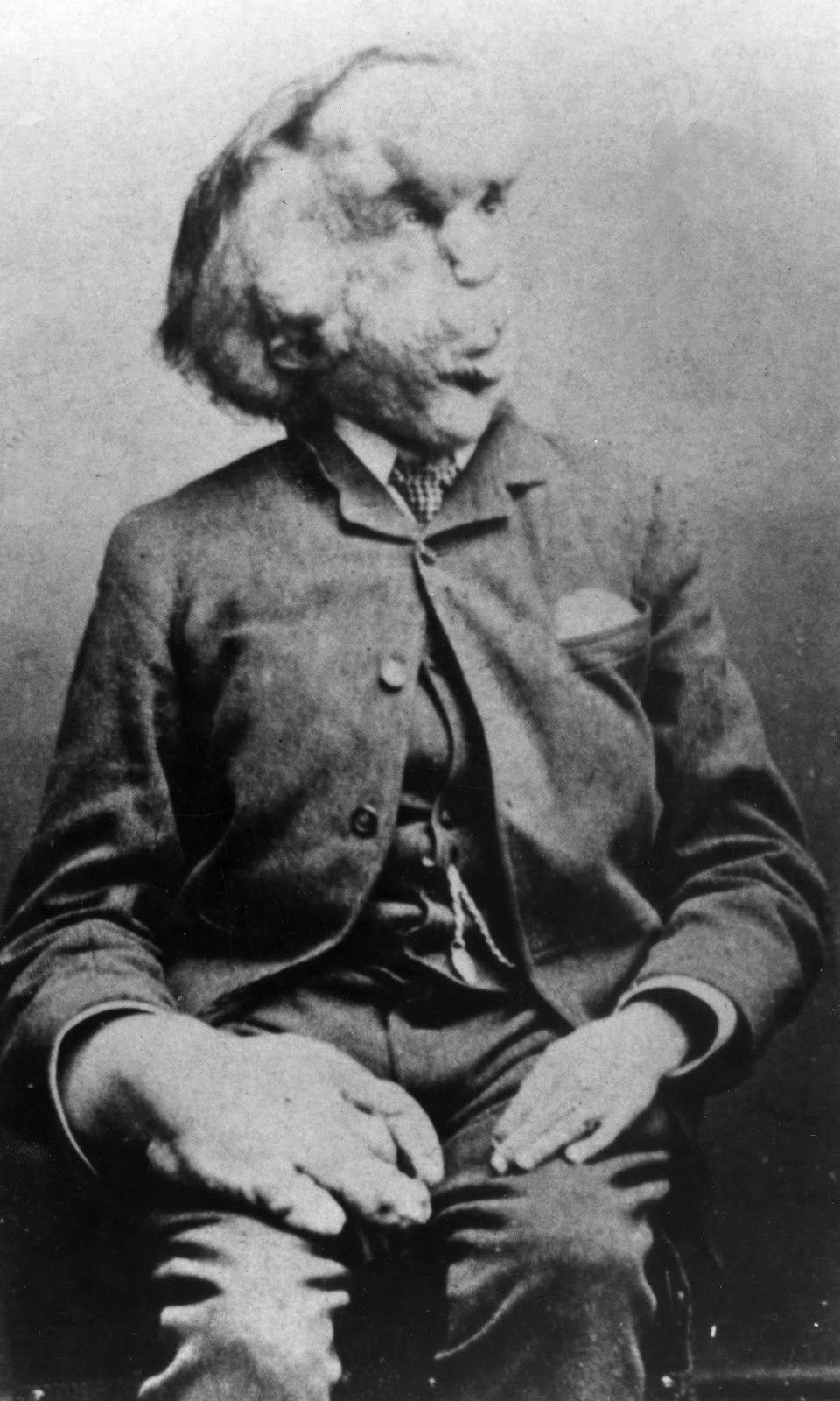 Joseph Merrick carte de visite photo, c. 1889