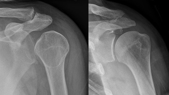 Lightbulb sign - posterior shoulder dislocation - Roe vor und nach Reposition 001.jpg