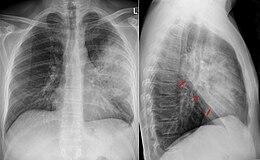 Pneumonite