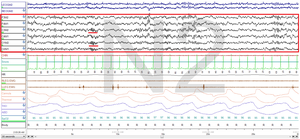 Non-rapid eye movement sleep - Stage N2 Sleep. EEG highlighted by red box. Sleep spindles highlighted by red line.