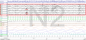 Stage N2 Sleep. EEG highlighted by red box. Sleep spindles highlighted by red line.