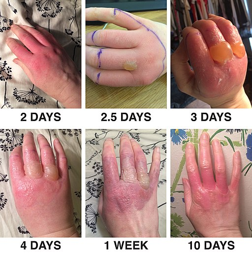 Phytophotodermatitis from exposure to lime juice