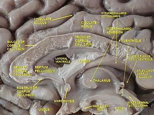 Septum pellucidum - Image: Slide 4ZE