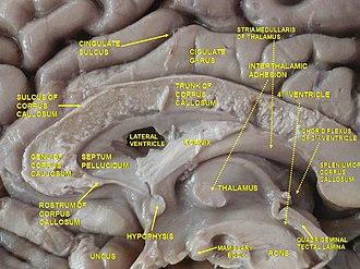 Cingulate sulcus - Image: Slide 4ZE