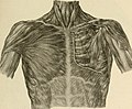 The breast- its anomalies, its diseases, and their treatment (1917) (14753787341).jpg