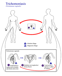 Can Trichomoniasis Be Contracted Non Sexually