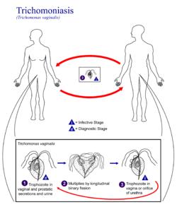 Trichomonas következmények a kezelés után