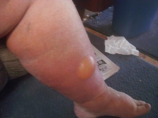 Water bubble in the leg (3)
