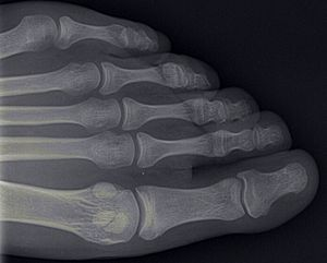 English: xray of toe bones Deutsch: Röntgenbil...