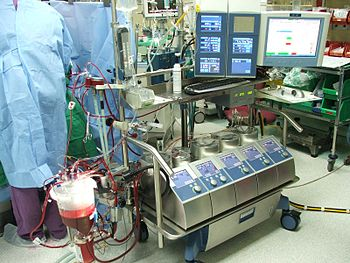 English: Modern Heart-Lung Machine עברית: מכונ...
