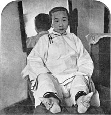 Black and white photograph of a sitting Chinese woman with pointy squished feet