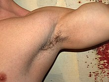 Armpit by David Shankbone.jpg
