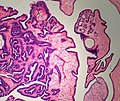 Breast IntraductalPapilloma Histiocytes MP PA.JPG