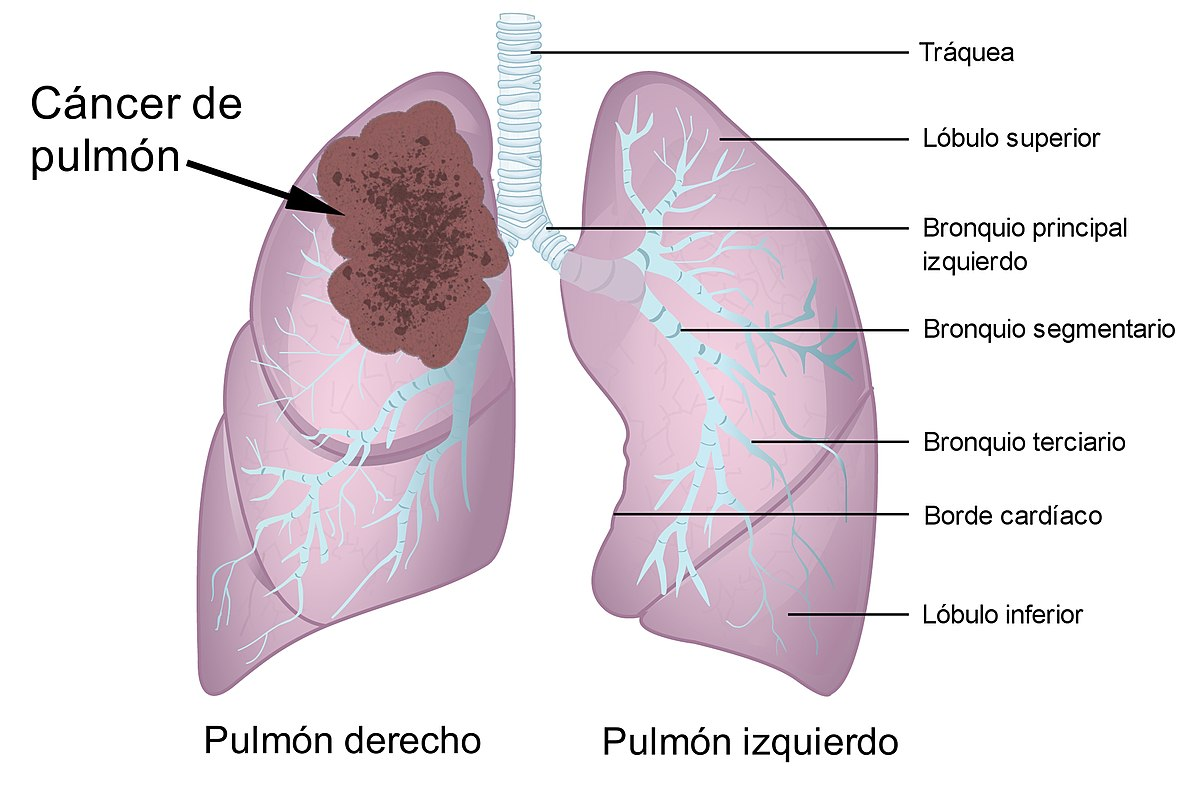 terapia genética de cáncer de próstata