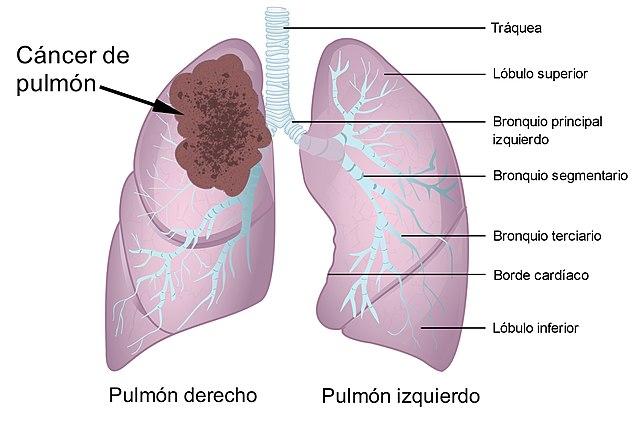 File:Cancer de pulmon.jpg - Wikimedia Commons