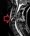 Cervical Spine MRI (T2W).jpg