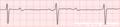De-Rhythm 3rdAVblock (CardioNetworks ECGpedia).png