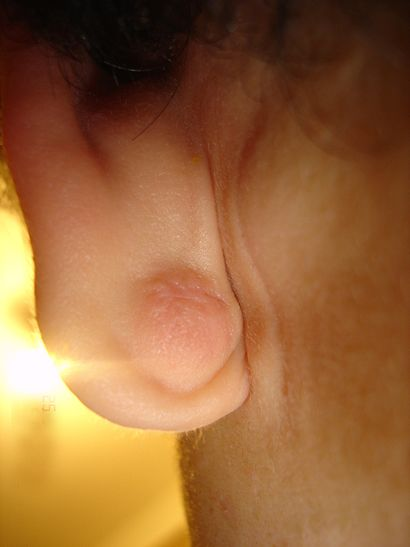 Epidermal Cyst ear.JPG
