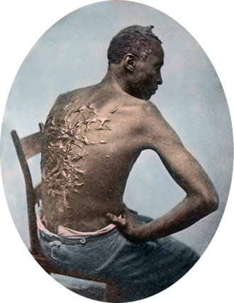 Slavery - Whipping scars during a medical examination in 1863 at a Union military camp in Baton Rouge, Louisiana. Gordon had escaped from slavery on a Louisiana plantation and gained freedom shortly after reaching the Union camp, later enlisting and serving in the Union Army.