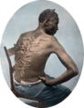 Gordon, scourged back, colored slide 2.png