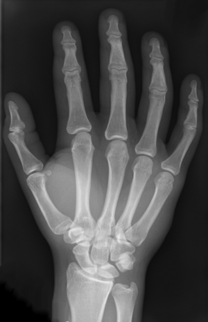 Intermetacarpal joints