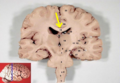 Human brain frontal (coronal) section description 2-emphasizing-corpus-callosum.png