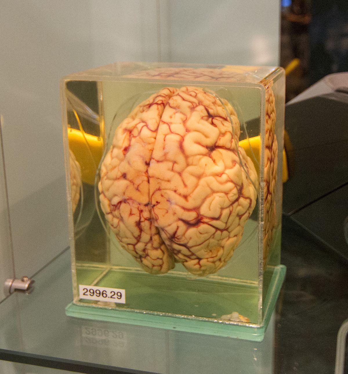 Formaldehyde Brain Banque de cerveaux Dou...