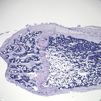 Marrow adipose tissue - Image: Increased Marrow Adipose Tissue cropped