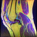 Knee MRI, T1T2PD 12.jpg