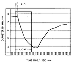 Latency of Pupillary Reflex to Light Stimulation and Its Relationship to Aging 4.png