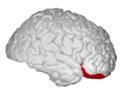 Lateral Orbitofrontal - DK ATLAS.png